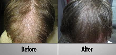 Hair Growth Oil Hair Transplant Montreal Doctor S Solution Hair